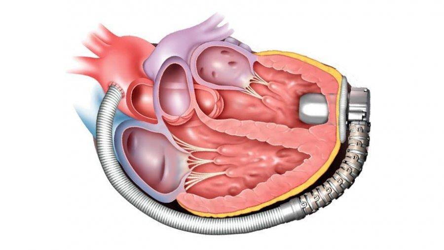 srcana pumpa