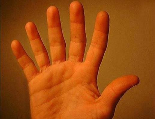 sest prstiju