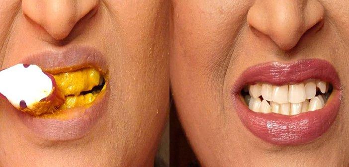 kurkuma zubi i desni