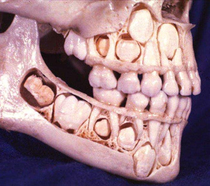 lobanja djeteta prije gubitka mlijecnih zuba