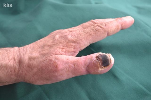 prst-operisan